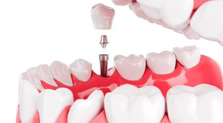 IMPLANTOLOGIJA – kako se ugrađuje i kakav je oporavak nakon ugradnje implantata?